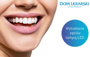 Wybielanie zębów wDomu Lekarskim